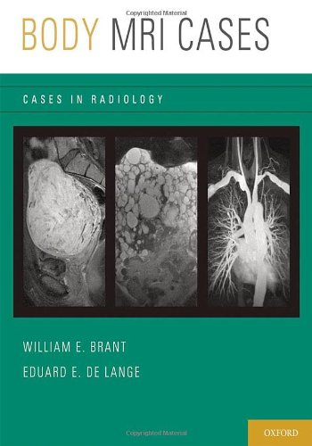 oxford handbook of radiology